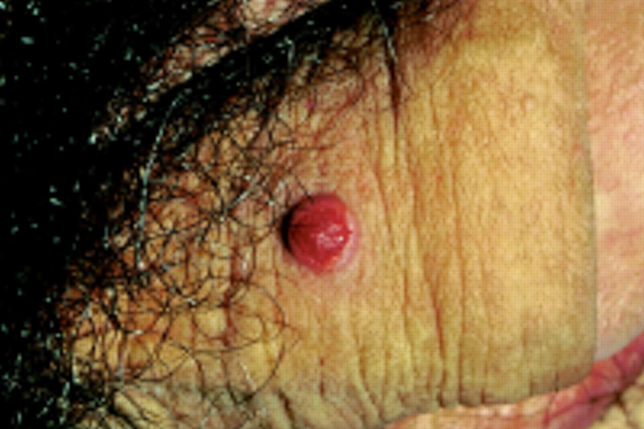 Venereal granuloma