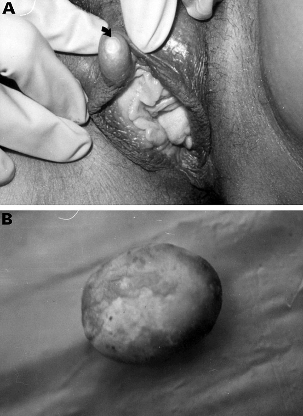 """A """"stone"""" in the vulva 