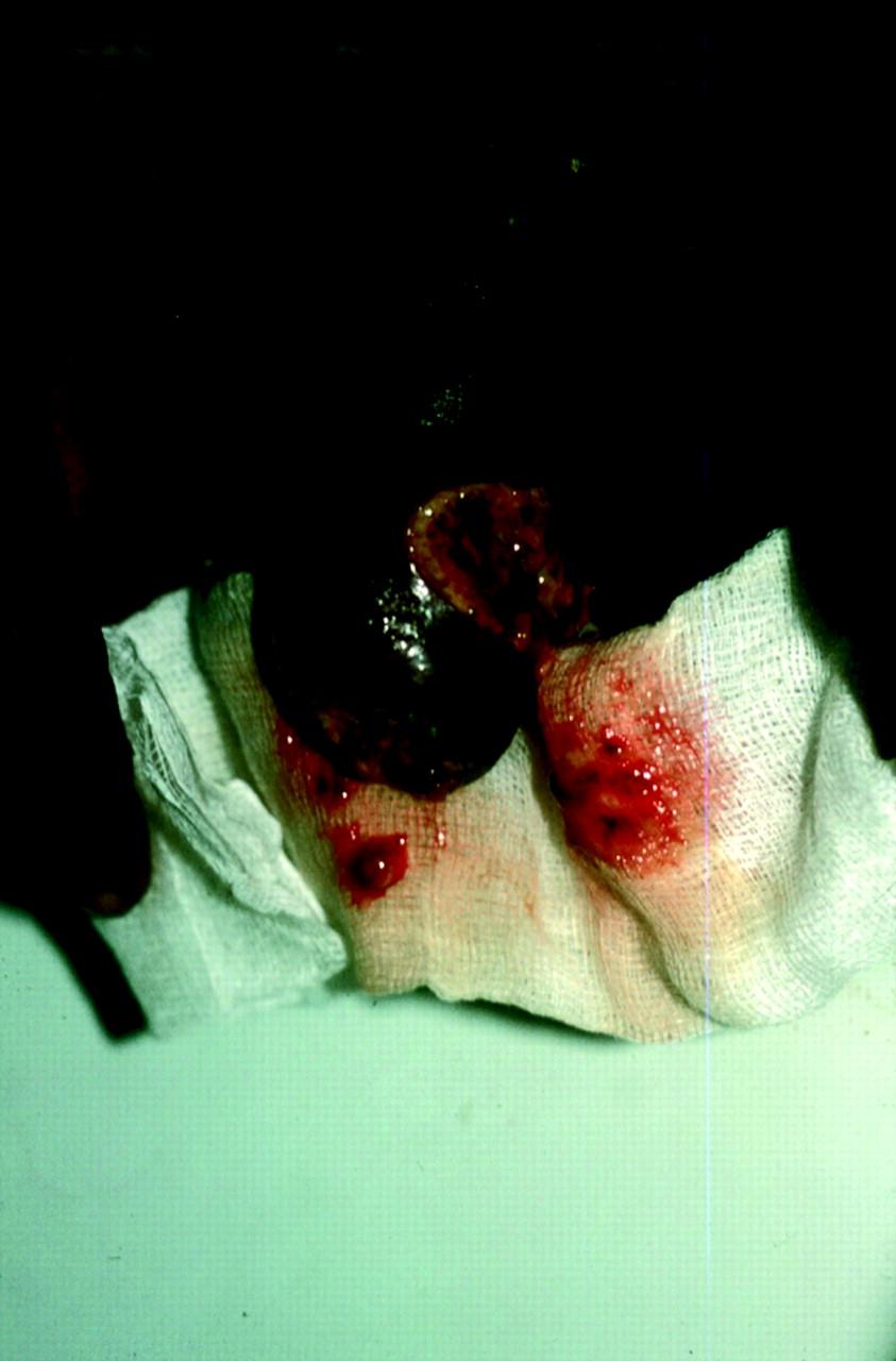 Genital Manifestations Of Tropical Diseases -- Richens 80
