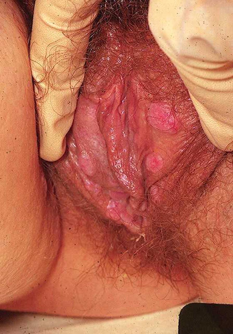 Vaginitis ii