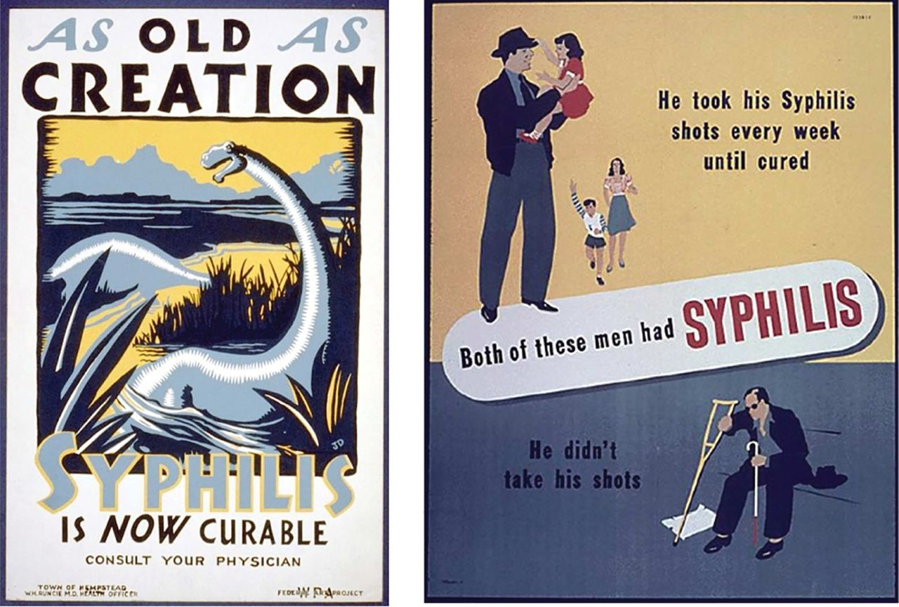 Sexually transmitted infections posters and prints